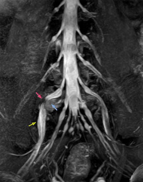 MRI of right L5 radiculopathy